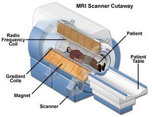 MRI mri-scanner